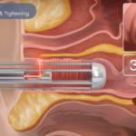 Công nghệ trẻ hóa âm đạo thịnh hành hiện nay là gì
