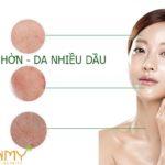Chọn lựa thành phần SALICYLIC hay GLYCOLIC trong chăm sóc da nhờn dầu?