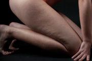 5 giải pháp điều trị Cellutilte ( da sần vỏ cam )